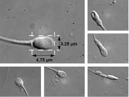 is Intracytoplasmic morphologically selected sperm injection