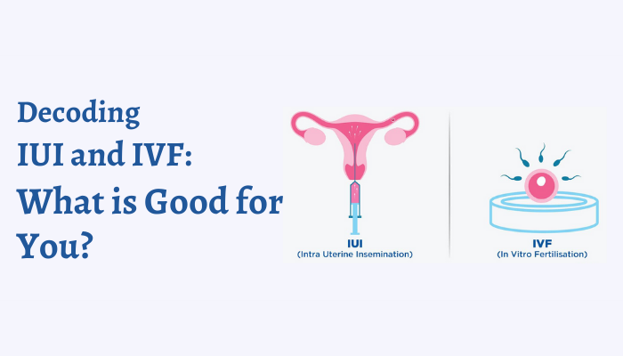 Decoding IUI and IVF What is Good for You